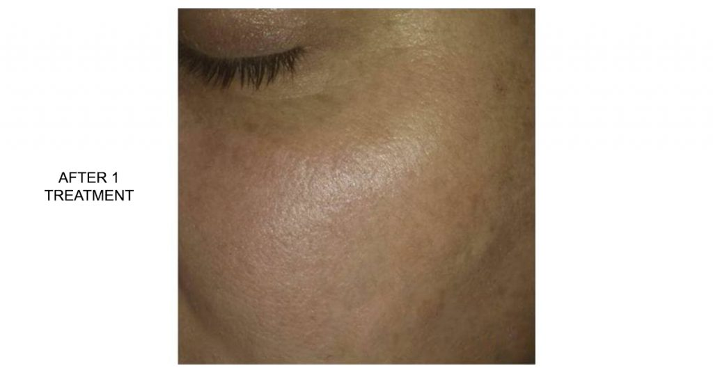 Laser pigmented lesion removal - after 1 treatment